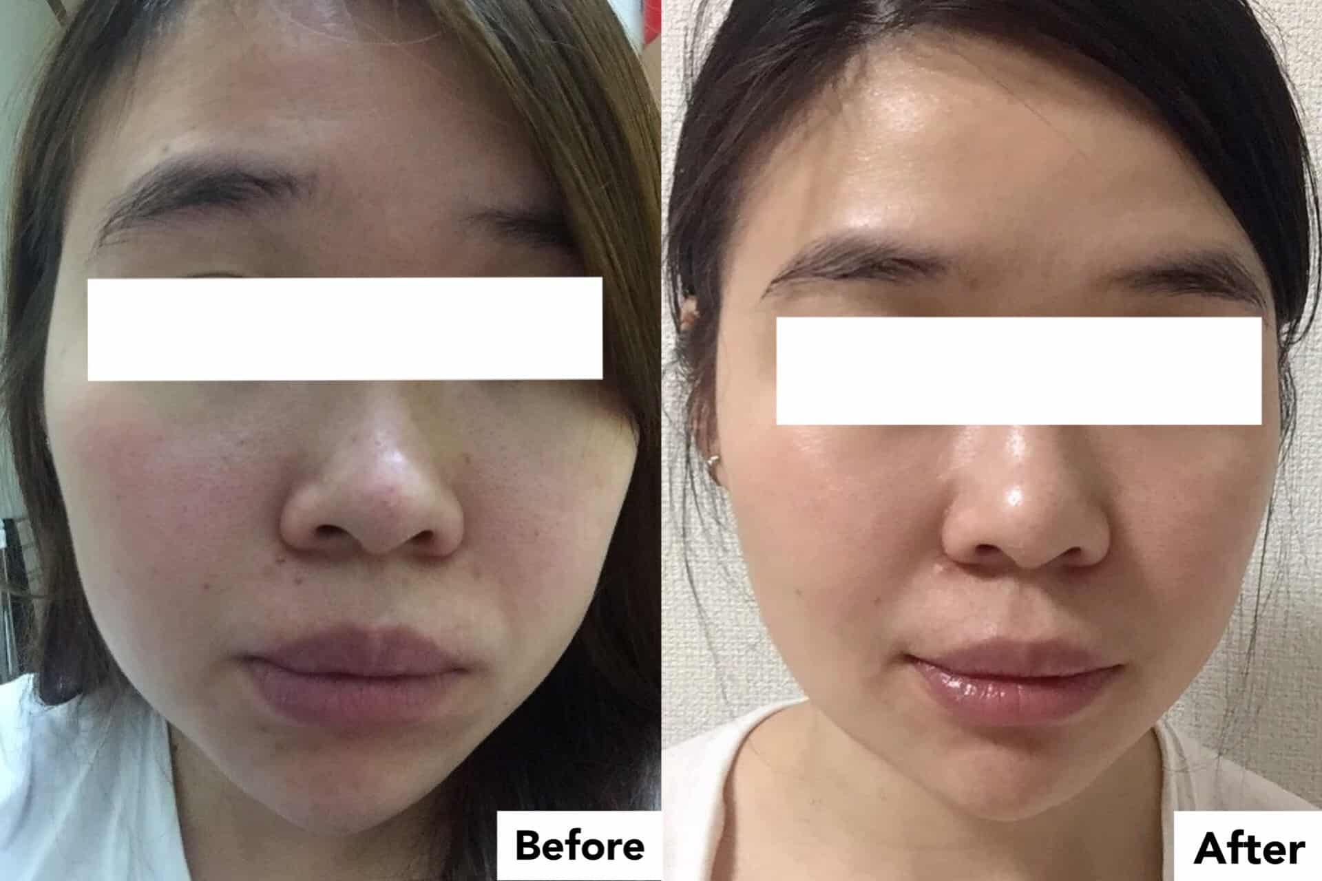 Collagen in Malaysia