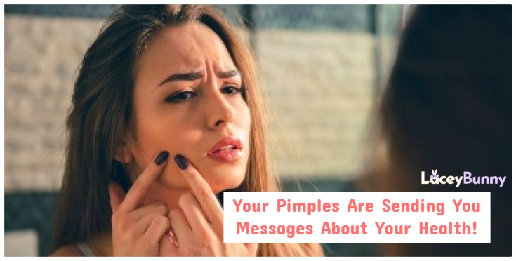 Your Pimples Are Sending You Messages About Your Health Habits!