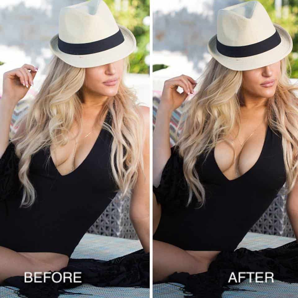Bra Inserts Before After